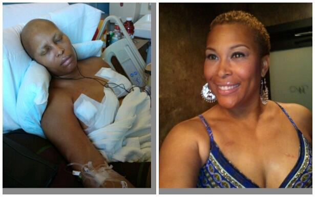 picture of breast cancer double mastectomy